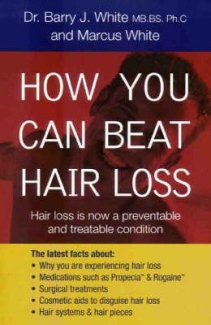 How You Can Beat Hair Loss