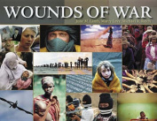 Wounds of War