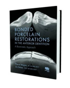 Bonded Porcelain Restorations in the Anterior Dentition