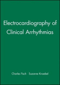 Clinical Electrocardiography of Arrhythmias