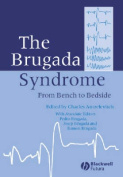 The Brugada Syndrome