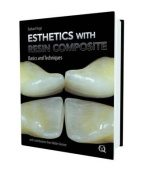Esthetics with Resin Composites