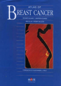 Atlas of Breast Cancer