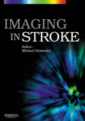 Imaging in Stroke