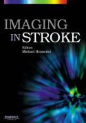Imaging in Stroke