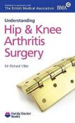 Understanding Hip & Knee Arthritis Surgery