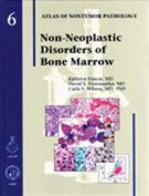 Non-Neoplastic Disorders of the Bone Marrow