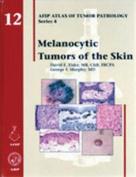 Melanocytic Tumors of the Skin