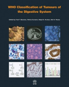Who Classification of Tumors of the Digestive System