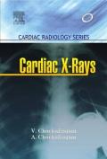 Cardiac X-Rays - Cardiac Radiology Series