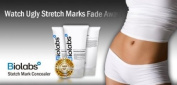 Biolabs Stretch Mark Concealer