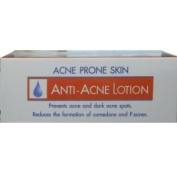 Vincere Anti Acne Lotion