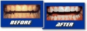 INSTANT WHITE SMILE'S optimised 36% Teeth Whitening Shield Syringes / Kits with FCP Remineralizing Gels - trays, tray cases for two