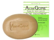 Acne Soap Bar by Acne Gone, Soap For Acne Treatment ,3.5 Oz / 100 g