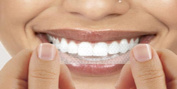 56 TEETH WHITENING STRIPS -PROFESSIONAL SAFE HOME FREE SHADE GUIDE