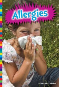 Allergies (Living with)