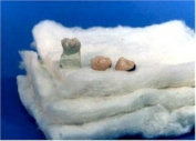 MDL Dental Ceramic Firing Pillows - 4pk 4x4 Squares