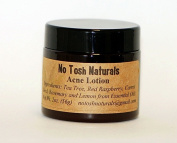 Natural Acne Lotion 60ml