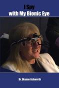 I Spy with My Bionic Eye
