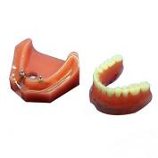 Doc.Royal Dental Study Teaching Model Teeth Implant Repair Model For Dentist