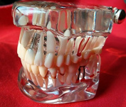 Yosoo Dental Study Teaching Teeth Model Adult Typodont Model Removable Tooth