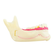 carejoy(TM) Dental Mandibular Tissue Teeth Demonstration Anatomical Model Patient Study Teach Model