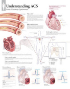 Understanding ACS Laminated Poster