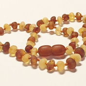 Genuine Raw Unpolished Honey Cognac Two Toned Baltic Amber Baby Teething Necklace Nature's Calm(TM) 30cm *Safety Knotted*Screw Closure*