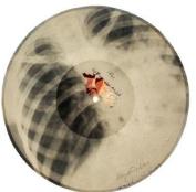 X-Ray Audio