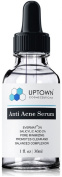 30ml Anti Acne Serum for Men, Women & Teens From Uptown Cosmeceuticals