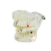 Denshine 1pc Bridge Tooth Dental Implant Disease Teeth Model with Restoration & Bridge Tooth