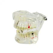 Denshine 1pc Bridge Tooth Dental Implant Disease Teeth Model with Restoration & Bridge Tooth