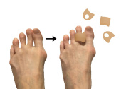 Pack of 4 Toe Separators and Spreaders for Relieving Pain Associated with Bunions, Overlapping Toes, and Toe Drift
