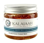 Salicylic Acid & Aloe 60ml Acne Clear Skin Treatment for Face & Body, Teens & Adults