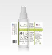 Neem After Burn Therapeutic Healing Spritz
