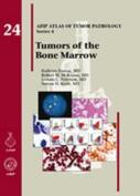 Tumors of the Bone Marrow