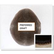 Preferredgraft (All Lace)