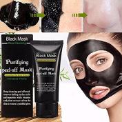 Blackhead Cleansing Mask Finewind Acne Face Mask Deep Clean Blackhead Oil-control Anti-ageing Acne Treatment