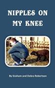 Nipples on My Knee