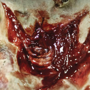 Tinsley Transfers ZOMBIE TORN THROAT - Film Quality Realistic 3D Prosthetic Makeup FX Transfer. Apply With Water.