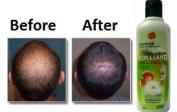 KOKLIANG KOK LIANG Anti-hair loss dandruff herbal scalp soothes shampoo 200cc . World Wide
