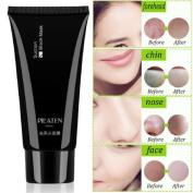 Uk Blackhead Mask Acne Remover Peel-off Mud Anti Ageing Facial Pore Tube